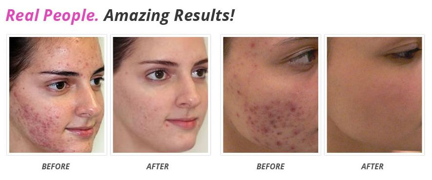 How To Get Rid Of Depressed Acne Scars Naturally