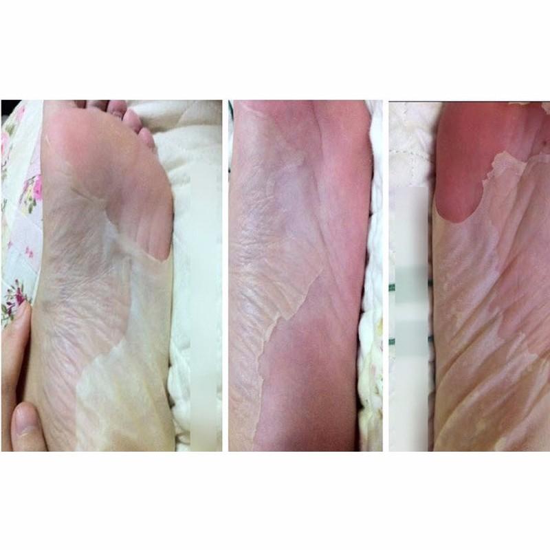 2pcs 1bag Baby Foot Peeling Renewal Exfoliating Mask For Feet Mask ... 8c4dc411d47f